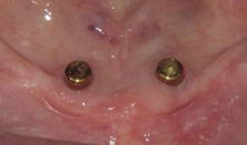 two implant overdenture 1
