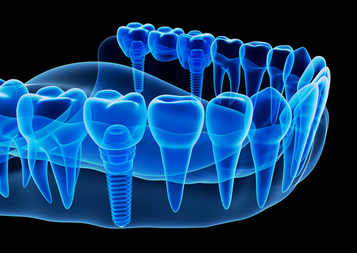 dental implants GettyImages 604893186